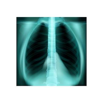 Composição do dia da pneumonia mundial realista com ilustração isolada de raio-x de pulmão humano