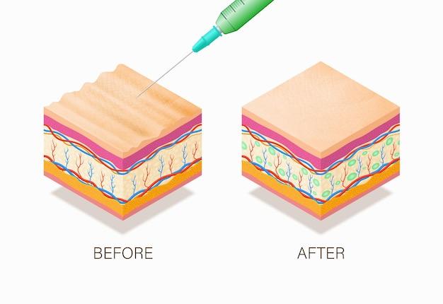 Conceito anti-envelhecimento com antes e depois do tratamento de beleza