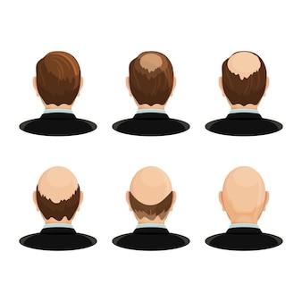 Conceito de alopecia. conjunto de cabeças mostrando o progresso da queda de cabelo.