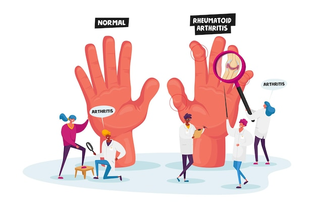 Conceito de artrite reumatóide