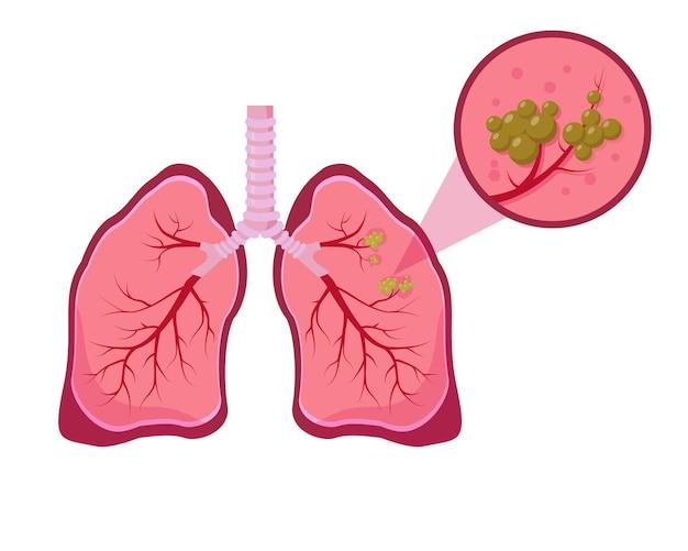 Conceito de câncer de pulmão. ilustração de doença pulmonar em fundo branco.