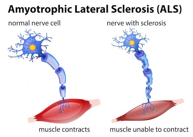 Conceito de esclerose lateral amiotrófica
