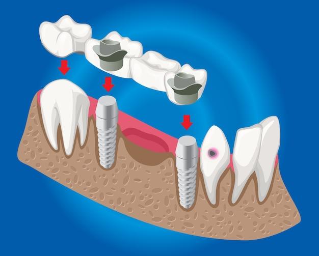 Conceito de odontologia protética isométrica com ponte dentária usada para cobertura de dentes ausentes