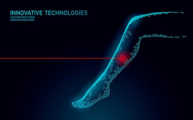 Conceito de operação de laser endovenoso de perna feminina 3d