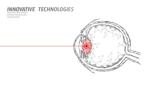 Conceito de operação de medicina de correção de visão a laser. cuidados de saúde de tecnologia de inovação. scanner biométrico de olho triângulo poligonal baixo poli 3d. globo ocular humano de oftalmologia