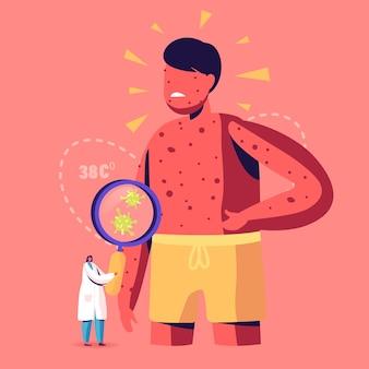 Conceito de sintomas de varicela de varicela. ilustração de desenho animado