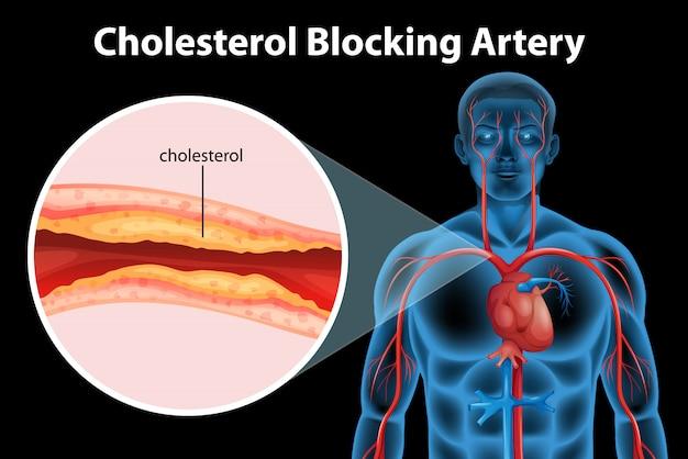 Condição médica de aterosclerose