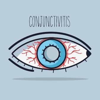 Conjuntivite inflamação alérgica do olho da visão