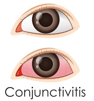 Conjuntivite nos olhos humanos