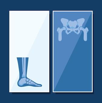 Conjunto de banner de reumatologia