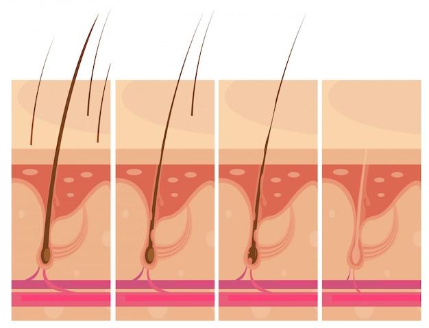 Conjunto de composições conceituais de storyboard de perda de cabelo
