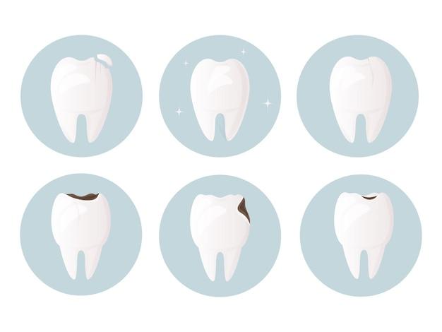 Conjunto de dentes danificados por rachaduras e lascas de cárie