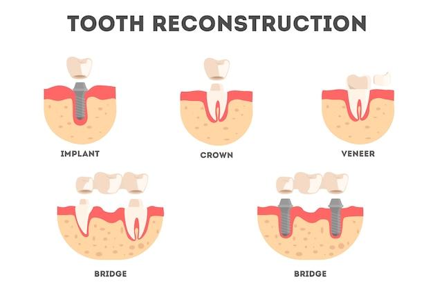Conjunto de diferentes tipos de reconstrução de dentes humanos. perda e repagamento de dente. ideia de saúde bucal e tratamento médico. ilustração