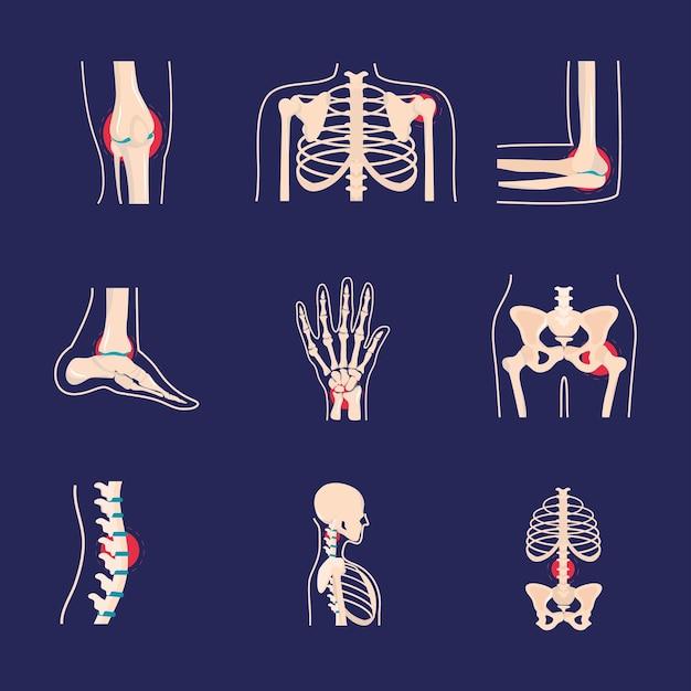 Conjunto de distúrbios reumatológicos