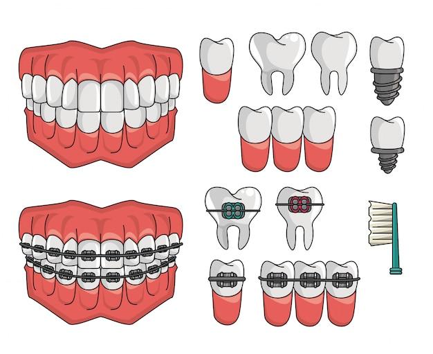 Conjunto de elementos de aparelho dentário