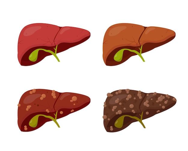 Conjunto de fígado humano isolado no fundo branco. estágios da doença hepática.