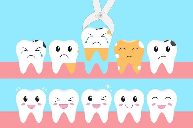 Conjunto de ícones de ilustração de dentes saudáveis e problema de perda de dentes
