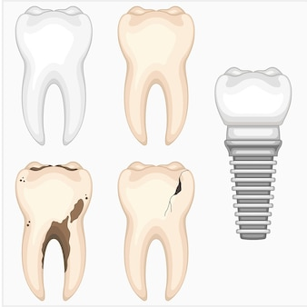 Conjunto de ilustração vetorial odontológica