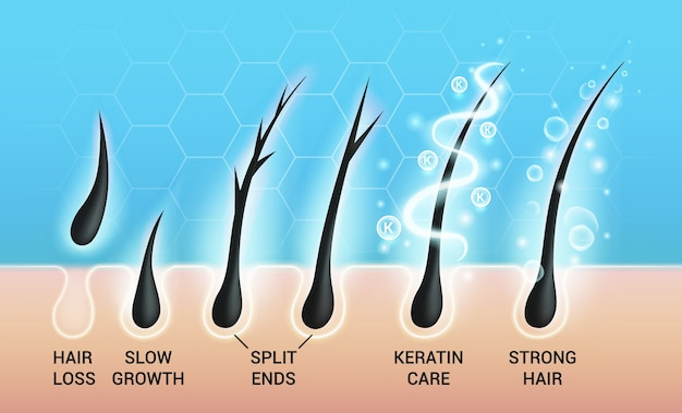 Conjunto de ilustrações de diferentes problemas de cabelo e tratamento de salão profundo, visão macro da pele calva do couro cabeludo e dos folículos