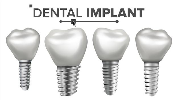 Conjunto de implantes dentários