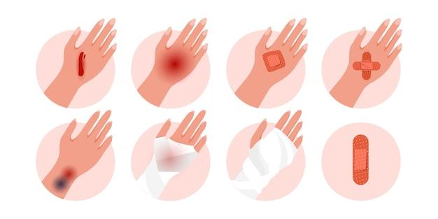 Conjunto de mão humana de lesão física com contusão, corte aberto de hematoma, feridas isoladas em um fundo branco.