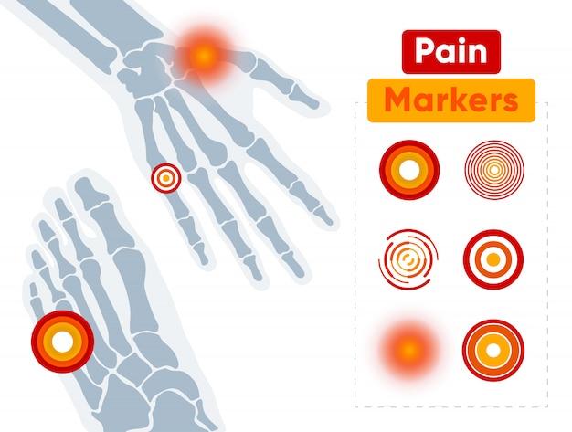 Conjunto de marcadores de dor gráficos