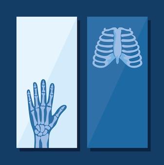 Conjunto de pôsteres de reumatologia