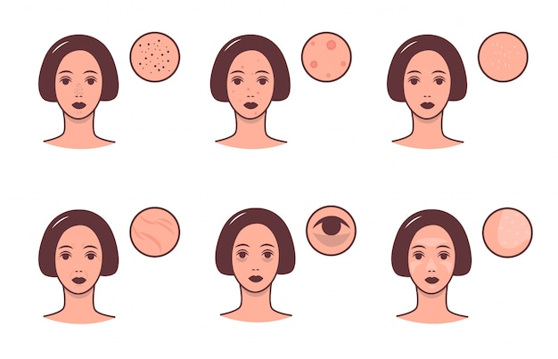 Conjunto de rostos femininos com várias condições de pele e problema. conceito de skincare e dermatologia. ilustração colorida.
