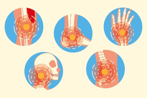 Conjunto de síndrome de dor nas articulações da artrite