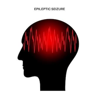 Convulsão generalizada ou parcial. epilepsia e atividade cerebral anormal. dor ou enxaqueca na cabeça humana