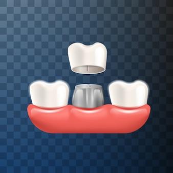 Coroa dentária de ilustração realista em vetor 3d