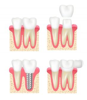 Coroa dentária. implantes de folheado dentário coleção de dentista estomatologia de cavidade saudável