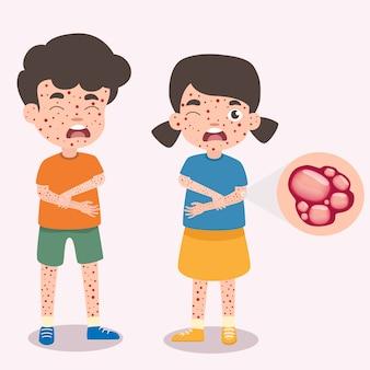 Crianças tem infográfico de catapora, poster crianças febre e sintomas e prevenção de varicela. cuidados de saúde e ilustração de personagem de desenho animado médica. bactérias e vírus assinam elementos.