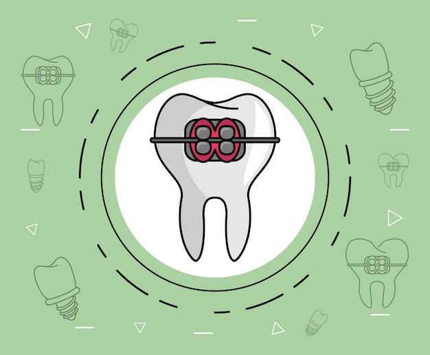 Cuidados dentários de aparelho dental