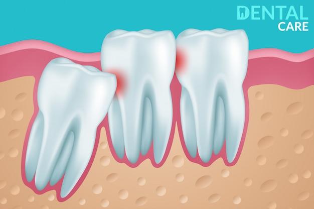 Cuidados dentários e dentes