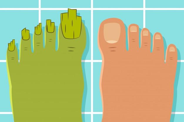 Dedos do pé feios com um fungo. de um pé saudável e doente, isolado no fundo.