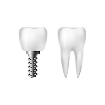 Dente branco saudável realista e implante com parafuso. odontologia e atendimento odontológico.