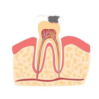 Dente de desenho animado com estágio de estilo de design plano de formação de cárie dentária isolado em um fundo branco. ilustração vetorial