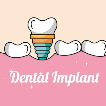 Dente e goma de implante dentário dentro da boca