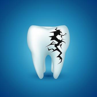 Dente em azul doente
