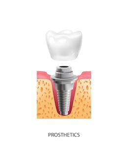 Dente realista com composição de implante dentário