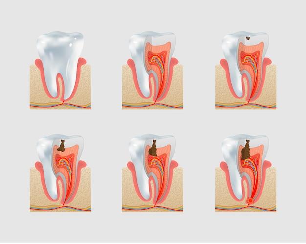 Dente saudável e conjunto de ícones de cárie dentária