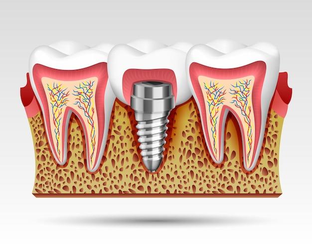 Dentes 3d em um corte com terminações nervosas e com um implante. ilustração vetorial