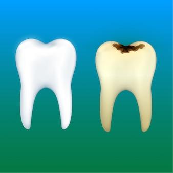 Dentes branqueamento e cárie dentária, vetor de saúde dental.