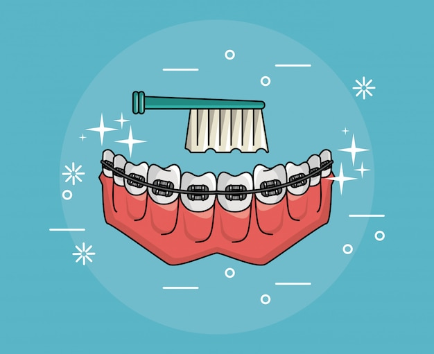 Dentes com aparelho de higiene dental