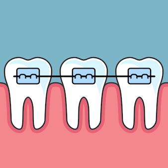 Dentes com aparelho dentário - arranjo dentário