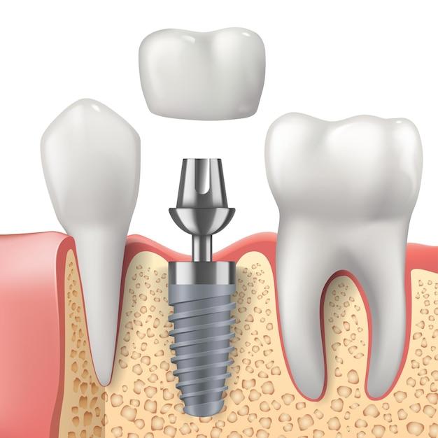 Dentes e design realista de implantes dentários