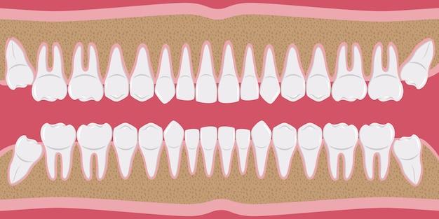 Dentes humanos brancos saudáveis em uma fileira