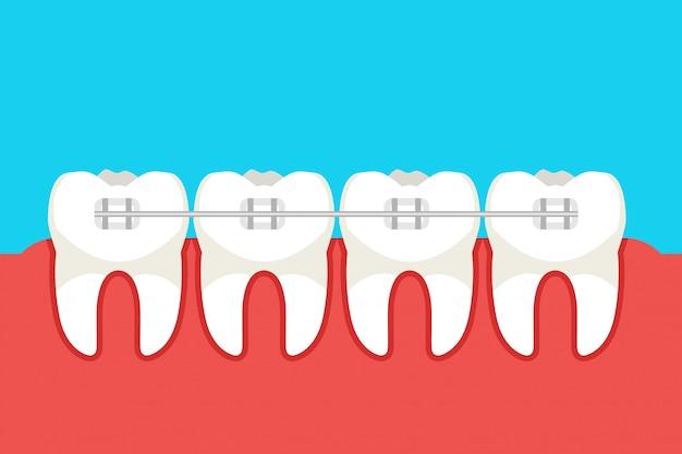 Dentes humanos com aparelho de metal. ilustração vetorial
