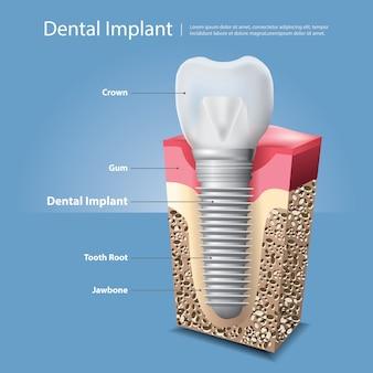 Dentes humanos e ilustração vetorial de implante dentário